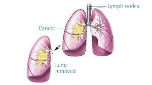 Obat Herbal Kanker Paru Paru Ace Maxs